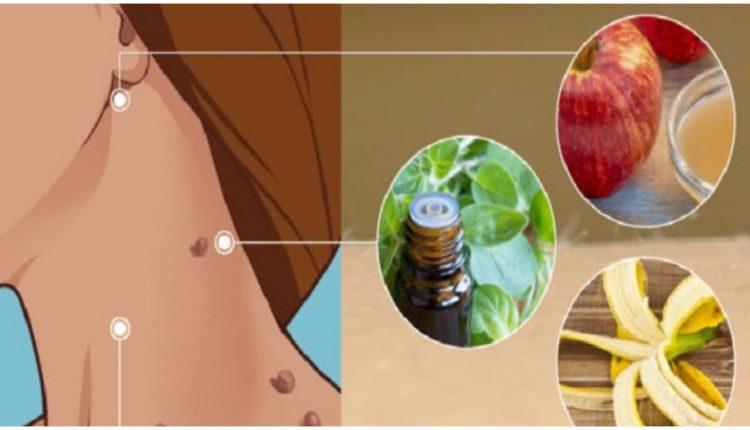 Κρεατοελιές! 12 Τρόποι για να Απαλλαγείτε από Αυτά τα Καλοήθη Θηλώματα (Ακροχορδώνες) του Δέρματος
