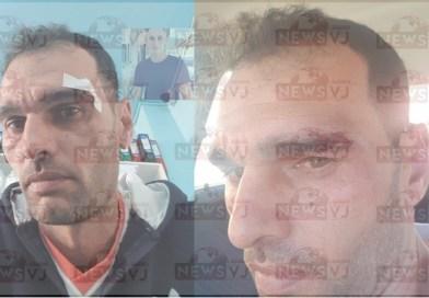 Moise Marius: este taximetrist. A fost bătut în cartierul Colonie dupa ce lăsase o comandă