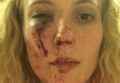 O româncă ce locuiește în Doncaster (Anglia) a fost atacată brutal de către 10 adolescenți