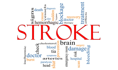 New technology could aid treatment in stroke patients