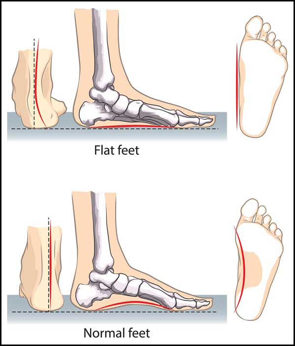 a732ce8c0cb How To Pick The Best Shoes For Flat Feet - Nextbiteoflife