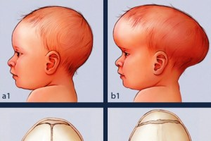 Craniosynostosis Cover