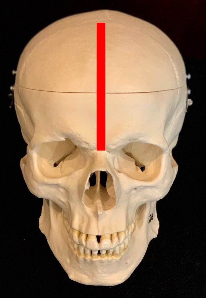Metopi c skull