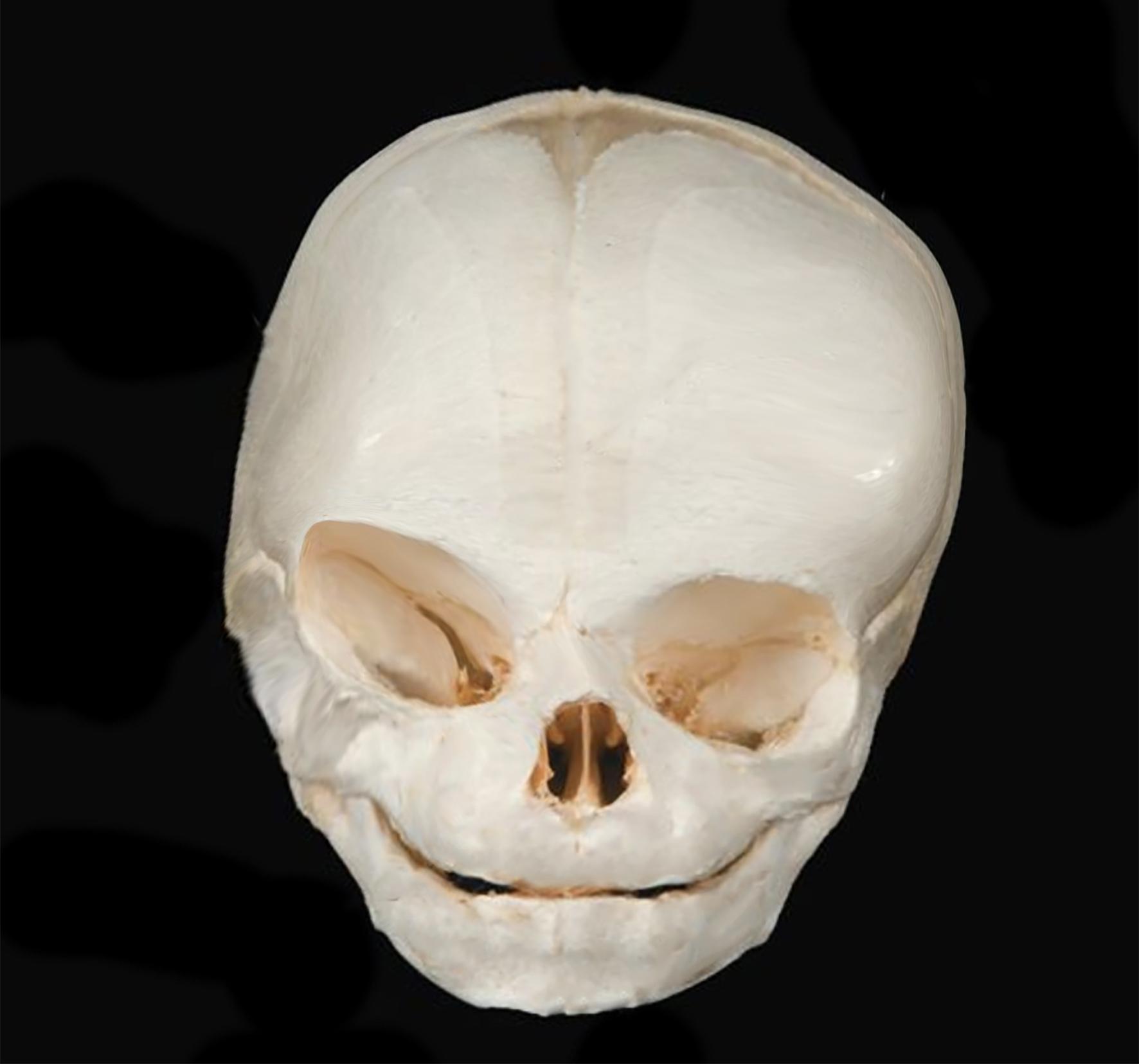 Coroanl skull AP