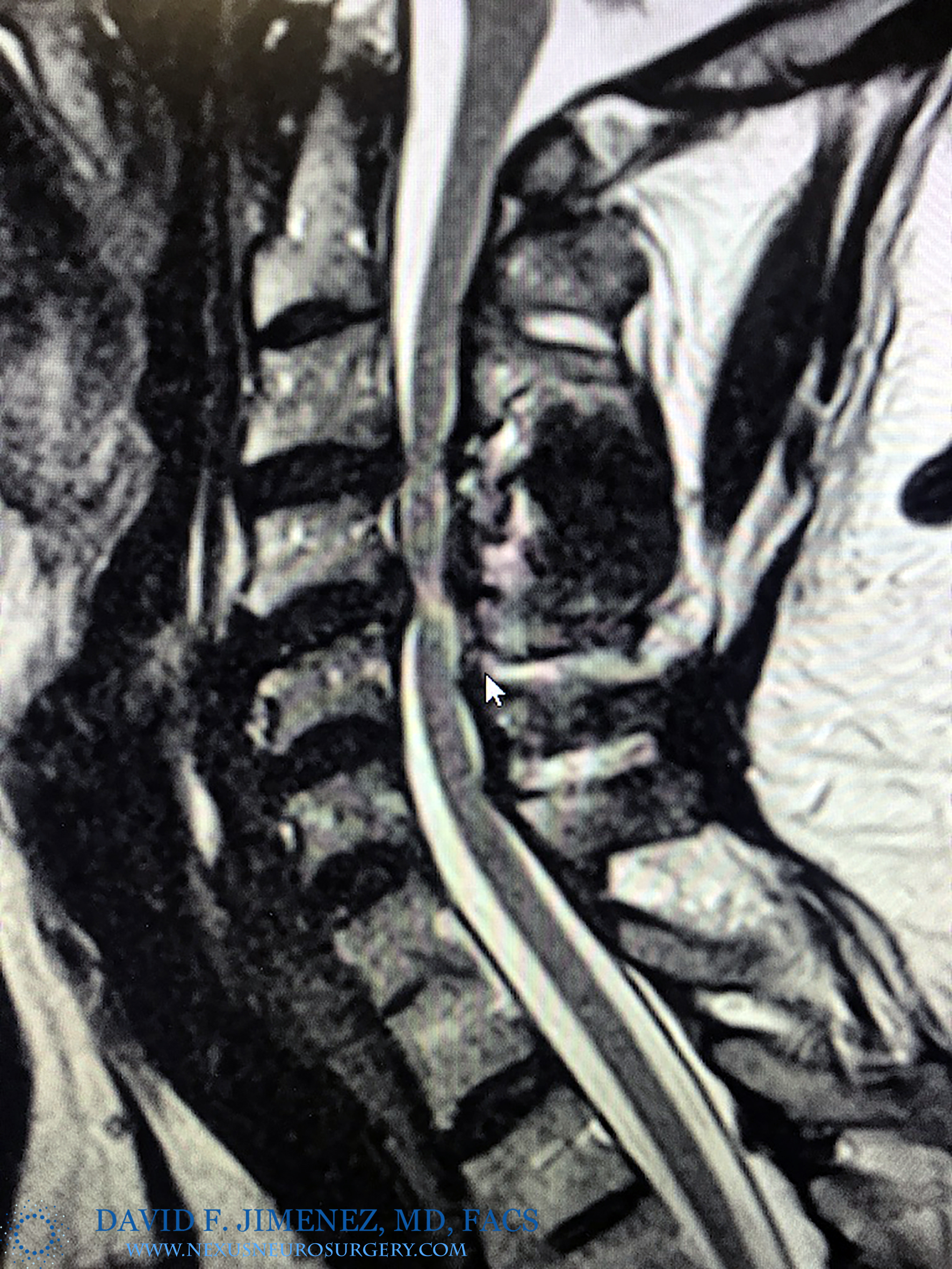 MRI CS stenosisi logo