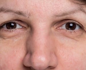 Castor Oil Benefits for Growing Eyebrows