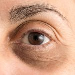 Grapeseed Oil Benefits for Reducing Dark Circles