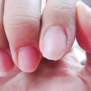 Lanolin Oil Benefits for Splitting Nails