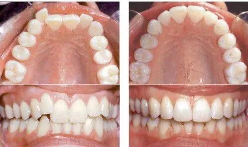 Niềng răng là gì ?