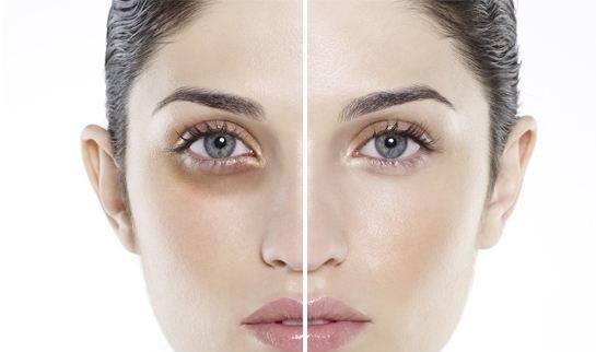 Thâm quầng mắt - Nguyên nhân và cách điều trị