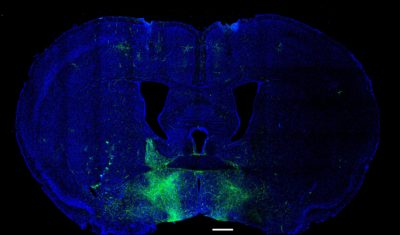 microscopy image of a rodent brain cross-section; pathways in the extended amygdala related to reward-seeking and aversion are labeled in fluorescent green