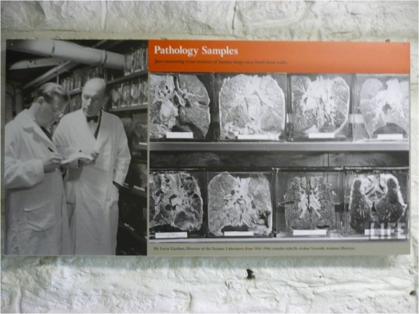 Dr. Leroy Gardiner, Director of the Saranac Lake Laboratory from 1926-1946, with Dr. Arthur Vorwald, Assistant Director, and with samples of workers' lungs to their right.  Photo: Jessica van Horssen.