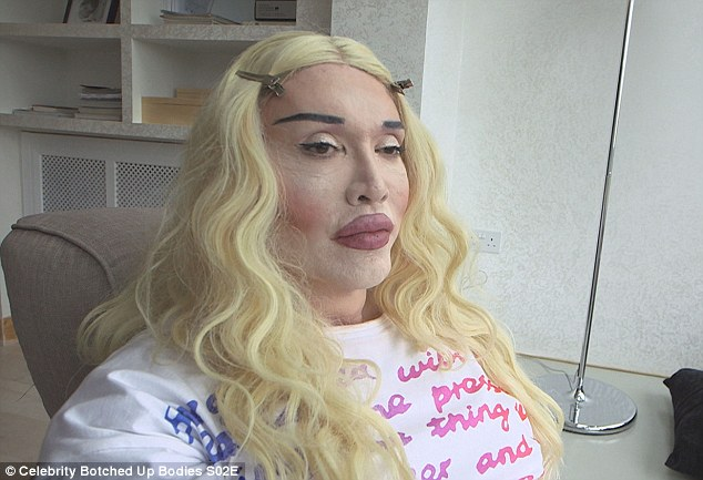 Pete Burns Admits He's Had Over 300 Operations To Fix Botched Surgery