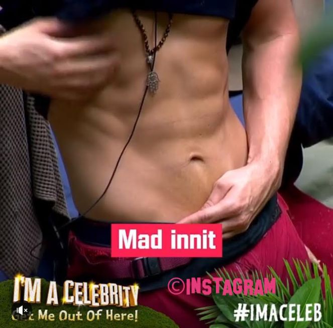 Adam Thomas Flashes His Abs In The I'm A Celebrity Jungle