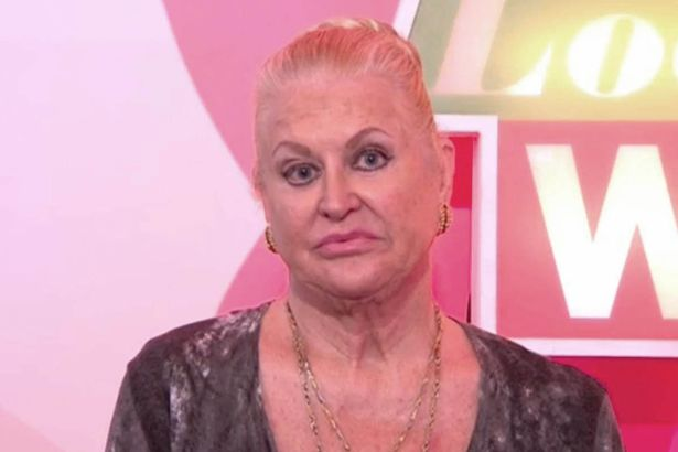 Loose Women Viewers Wanted Kim Woodburn To Be Reunited With Coleen Nolan But Were Left Disappointed!