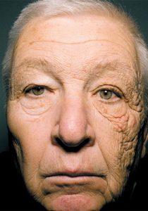紫外線顔半分