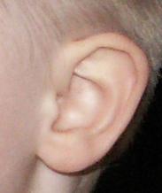 Musen i øret er væk