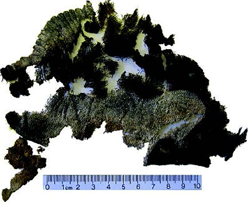 The-Kostrup-1