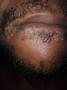 oral herpes simplex images