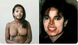 Vitiligo myths and facts