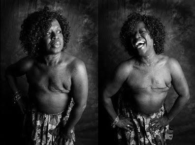 Cost of mastectomy in Nigeria