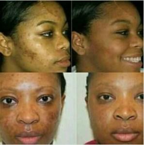 Skin care routine for oily skin in Nigeria + Skin Care Products for oily skin In Nigeria