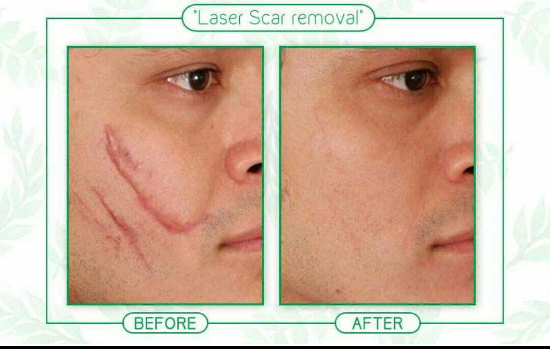 laser scar removal cost