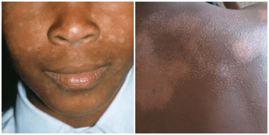 What can i use to Cure Eczema in Nigeria?