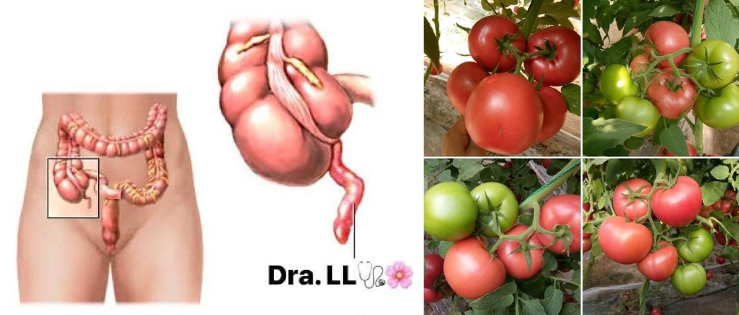 Does tomato seeds cause appendicitis?