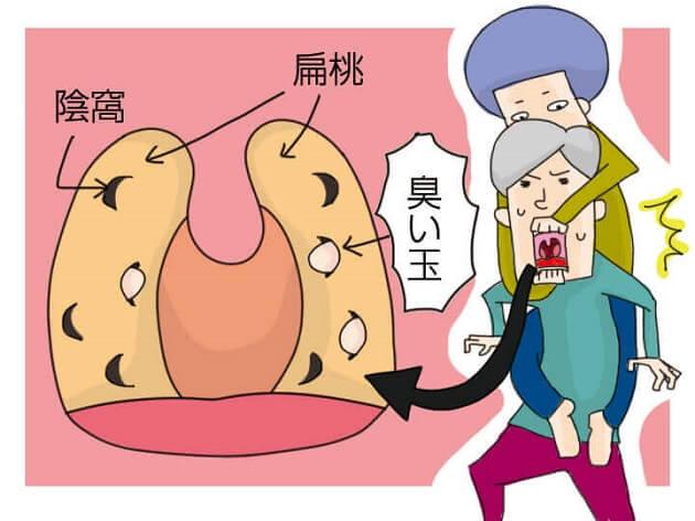濃栓は扁桃にある陰窩と呼ばれる穴の中にできる