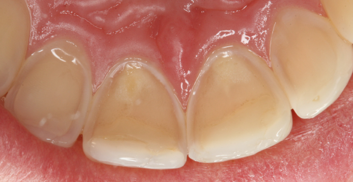 Dental erosive wear – a growing problem in the Nordic countries