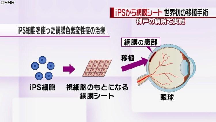 صورة توضيحية لخطوات التجربة السريرية | عبر كيودو