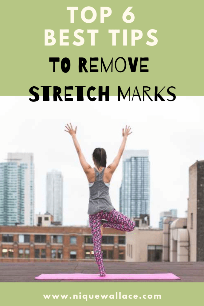 Top 6 Best Tips to Remove Stretch Marks