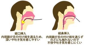経口と経鼻挿入の違い