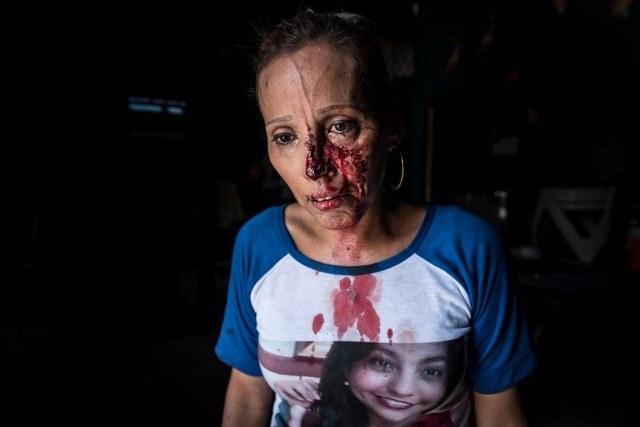 Como resultado del ataque perpetrado por los antimotines y turbas, decenas de personas fueron heridas, incluido el periodista Wiston Potosme del programa Café con Voz. Además que se realizaron al menos diez detenciones según informó el Centro Nicaragüense de Derechos Humanos (Cenidh). Foto: Óscar Navarrete | Niú