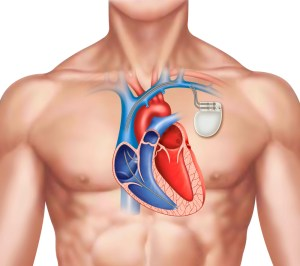 illustration of a human figure with a pacemaker on the left side of the chest