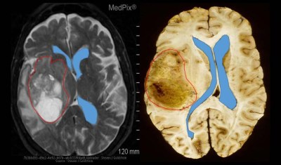 two brain images with the glioblastoma tumors outlined