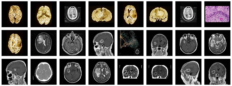 What does a glioblastoma look like?