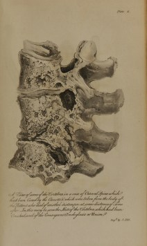 A drawing of 3 damaged and partially fused vertebrae.