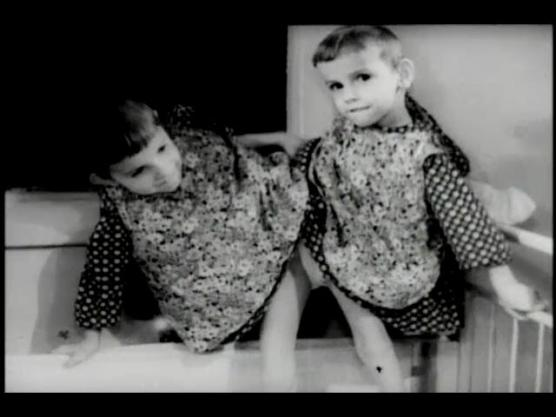 Young conjoined twins stand in a crib.