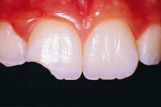 Randevú hiányzó fogak
