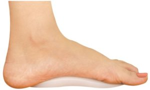 Foot with arch support