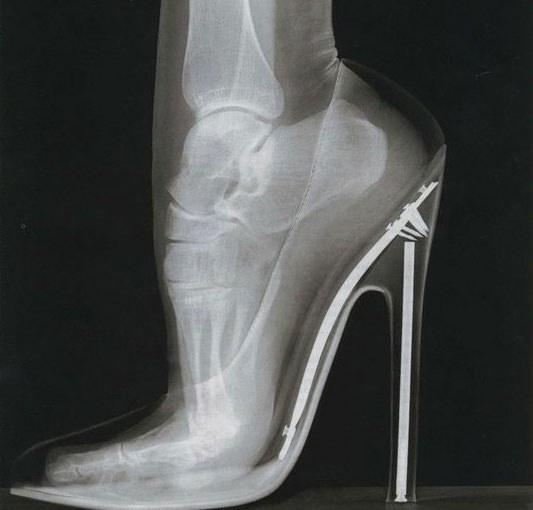High heels – high risk for injury?
