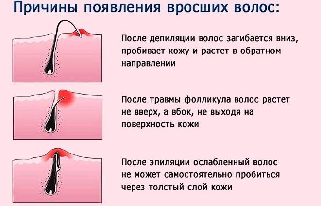 момент русские студентки на секс собеседование онлайн вопрос обсуждается