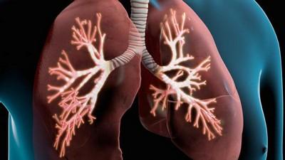 Ce semne de edem pulmonar pot fi observate pe o radiografie