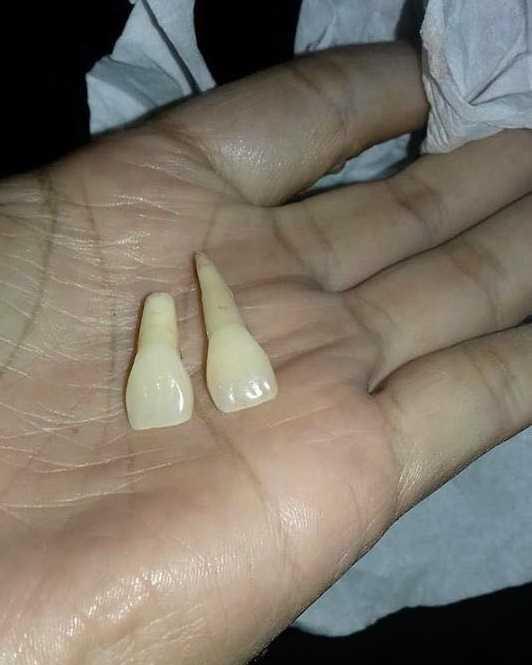 Homem arranca dois dentes da esposa com um chute por causa de celular / Foto: Reprodução