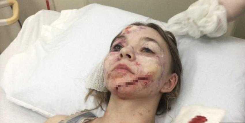 Taylor Hickson estava gravando o filme de terror 'Ghostland' / Foto : Reprodução