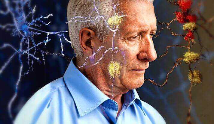 Cientistas criam jogo para ajudar a diagnosticar Alzheimer
