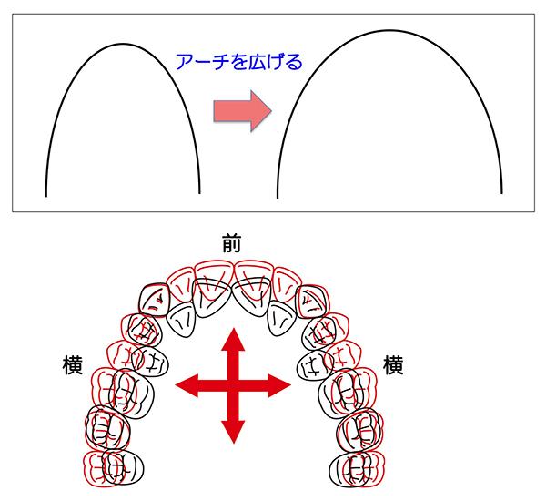 歯列拡大_600