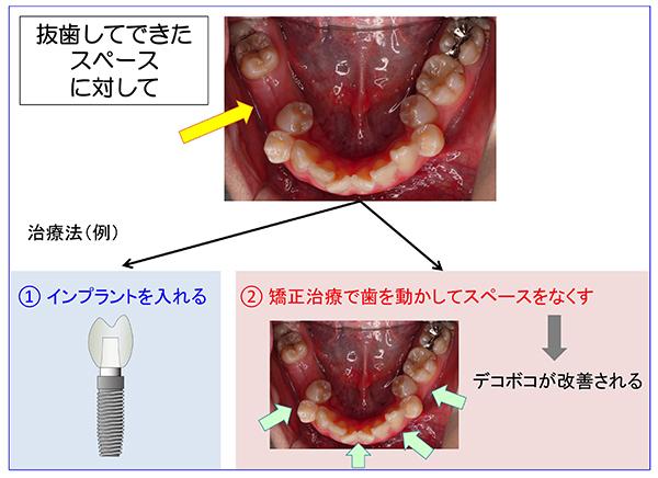 抜歯後治療2_600